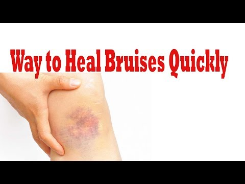 how to get rid of bruises || Way to Heal Bruises Quickly |  how to remove bruises