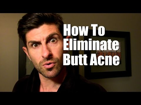 How To Eliminate Butt Acne (Buttne) | Stop Butt Breakouts & Pimples