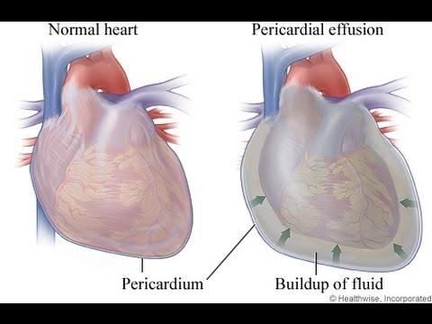 My Pericarditis or Heart Fluid Buildup. I think it was caused by an infection. It happened suddenly.