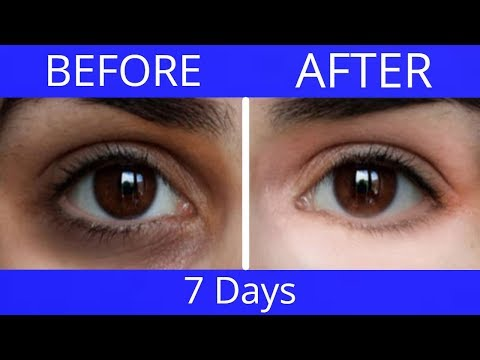 Remove Dark Circles, Puffy Eyes & Eye Bags Naturally (100% Effective) - My Simple Remedies