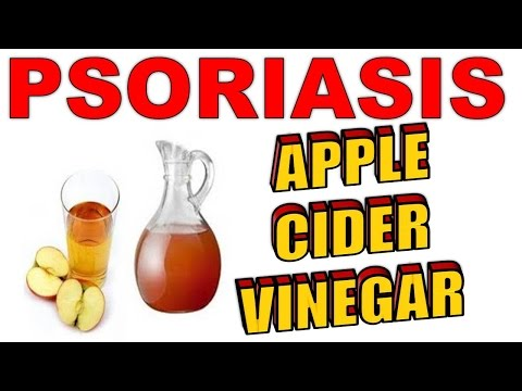 How To Use Apple Cider Vinegar To Treat & Cure Psoriasis