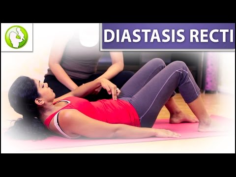 How to Identify Diastasis Recti
