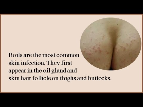 Get Rid Of Boils On Inner Thighs And Buttocks fast and natural