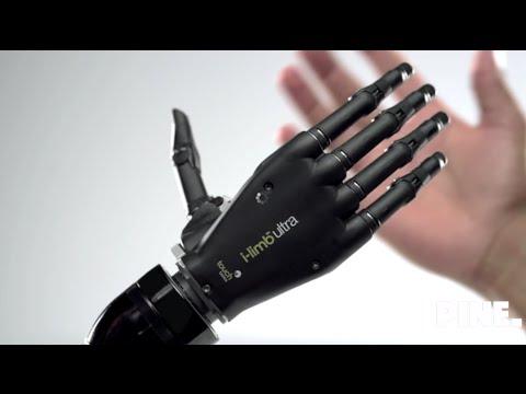 Top 5 bionic arm