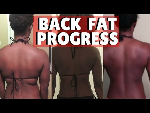 BEFORE & AFTER PROGRESS OF GETTING RID OF BACK FAT + Back Fat Workout