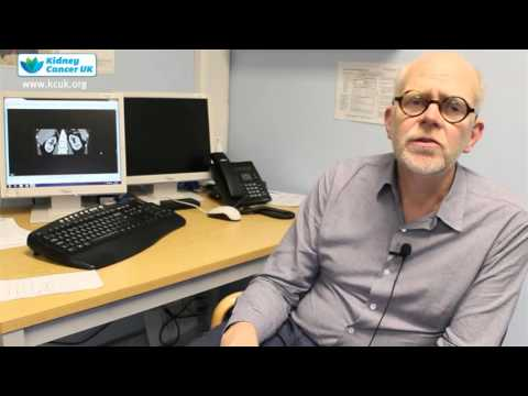 Michael Aitchison - 1. What are the signs of Kidney Cancer