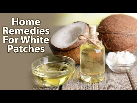 Home Remedies For White Patches/Leucoderma
