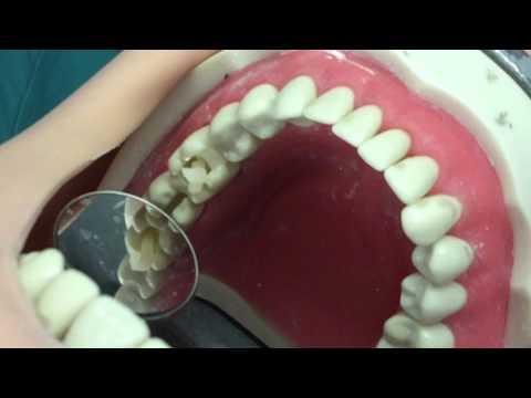 19 MO Composite Restoration - NYU Dentistry GDS I
