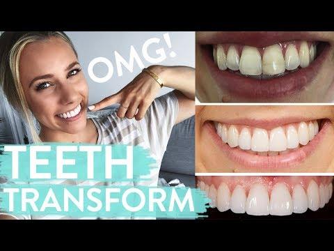 TEETH TRANSFORMATION | Porcelain Veneers | Before & After + Review