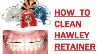 176 How I Clean My Hawley Retainer