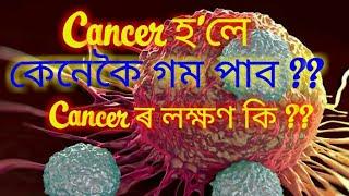cancer হলে কেনেকৈ গম পাব || causes of cancer in Assamese || symptoms of cancer in Assamese //
