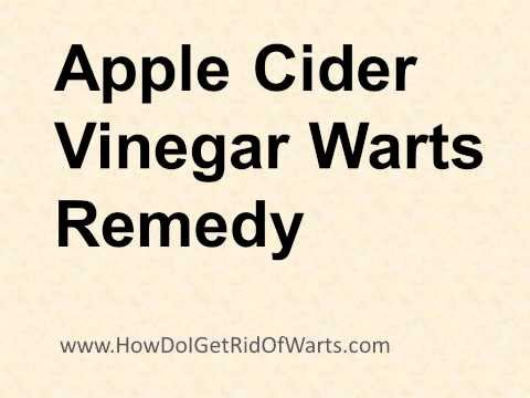 Apple Cider Vinegar Warts Remedy - 10 Steps To Remove Warts