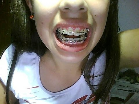 My Teeth Before and After Wearing Braces