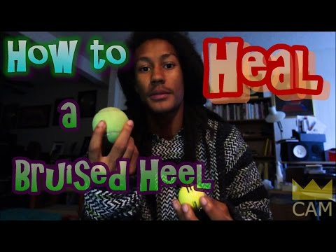 How to Heal a Bruised Heel