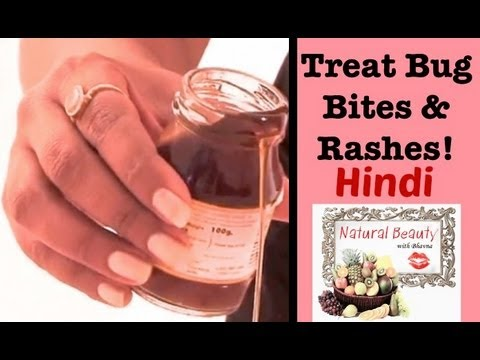 Home Remedy to Treat Bug Bites & Rashes - Hindi