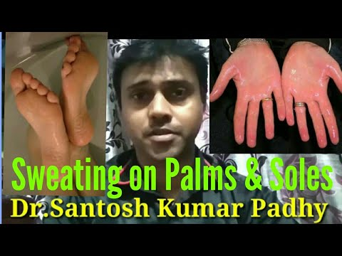 Homeopathy treatment for hyperhidrosis.|| Excess Sweating of hands and feet.||In English