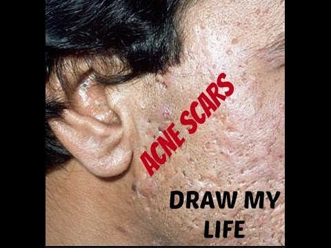 WHAT CAUSES ACNE AND ACNE SCARS? DRAW MY LIFE STYLE