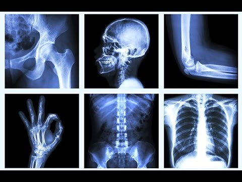 Natural Bone Remedy for Osteoporosis!