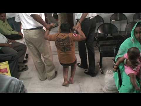 Magic treatment of cerebral palsy in india -indian cerebral palsy