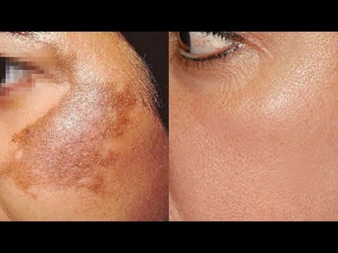 Remove Skin Pigmentation PERMANENTLY At Home | Potato To Treat Pigmentation, Dark Spots & Acne Scars