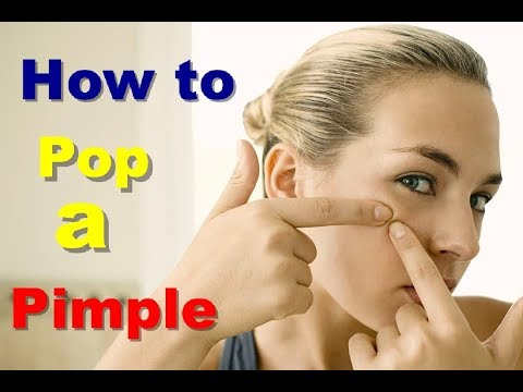 How to Pop a Pimple Naturally Pop a Pimple With Home Remedies How Big Pop A Pimple At Home