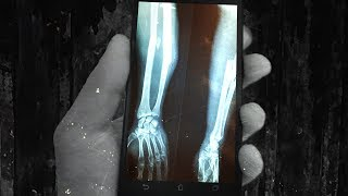 Smart Phones to Send Data Through Your Bones with Bioacoustic Signals