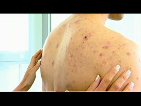 9 Ways to Get Rid of Back Acne Overnight