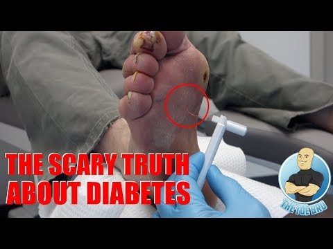THE ANSWER TO FIX HIS DAMAGED NERVES?! DIABETIC NEUROPATHY (PART 2) - FOOT HEALTH MONTH 2018 #22