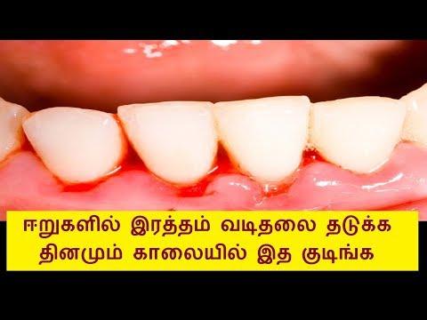 How to stop gum bleeding naturally in Tamil | Teeth bleeding in Tamil