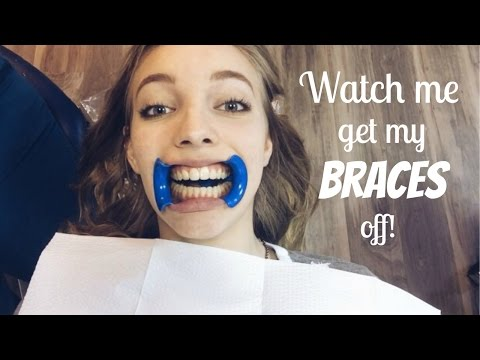 Watch me get my Braces off!!!