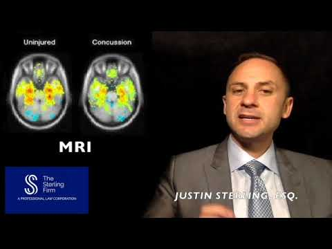 WHAT IS THE TREATMENT FOR A TRAUMATIC BRAIN INJURY?