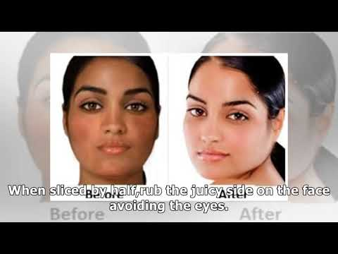 How to Lighten Skin, Fast, Overnight, Naturally, Permanently, Home Remedies