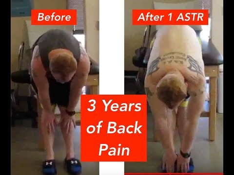 Groundbreaking Back Pain Relief Treatment!