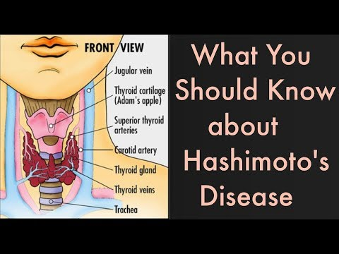 What is Hashimoto's disease, the condition Gigi Hadid and many other women have?