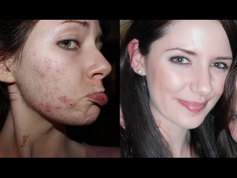 How To Get Clear Skin! Farewell, Acne.
