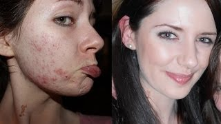 Causes Of Acne How To Get Clear Skin Naturally 7 Lifestyle Steps