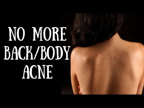 How to get rid of body acne in just 7 Days | DIY Back & Body acne/pimples spray I AVNI