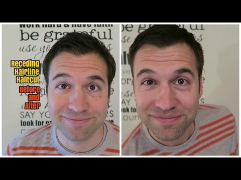 Receding Hairline: Before and After Haircut