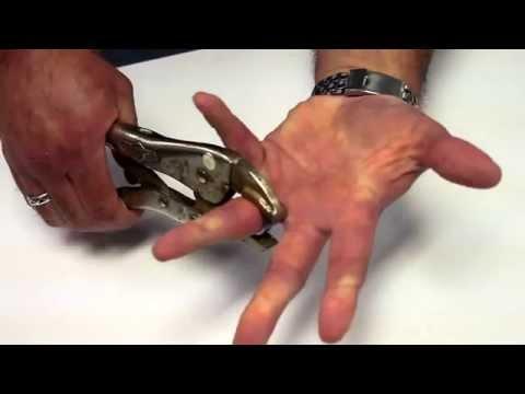 Tungsten Ring Removal Tecnique