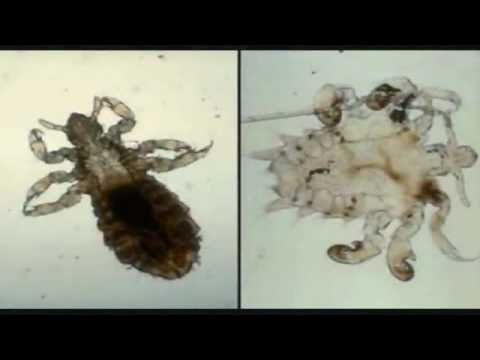 Diatomaceous Earth - Naturally Kill Bed Bugs