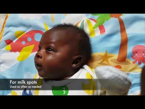 Treating baby's skin: eczema and milk spots