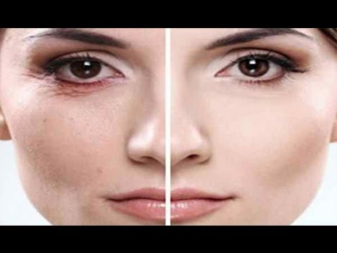 😍Goodbye Wrinkles These 2 Natural Tonics Will Help You Get Rid of Wrinkles Forever
