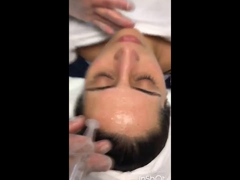Mesotherapy treatment (vitamin injections)