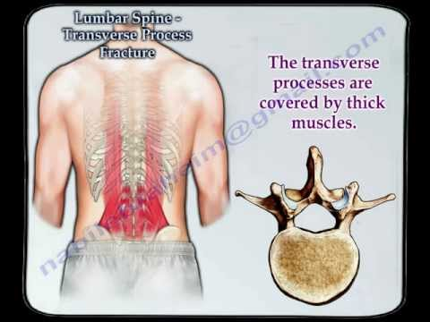 Lumbar Spine Transverse Process Fracture  - Everything You Need To Know - Dr. Nabil Ebraheim