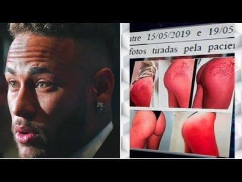 Xxx Mp4 Veja Fotos Usadas No Laudo Da Mulher Que Acusa Neymar De Estupro 3gp Sex