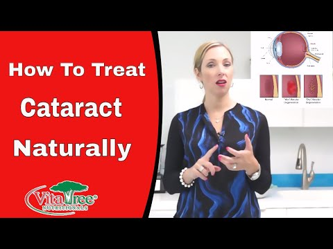 How To Treat Cataract : Natural Home Remedy For Cataracts - VitaLife Show Episode 190