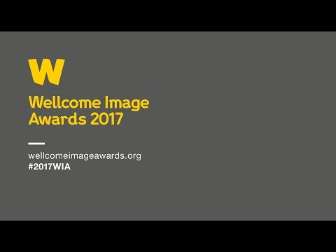 Wellcome Image Awards 2017 | The winners