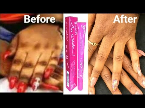HOW I GOT RID OF MY DARK KNUCKLES IN 2 DAYS WITH SO WHITES TUBE