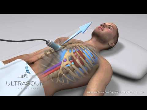 How to obtain: Inferior Vena Cava Ultrasound View- Training and Techniques - ICU