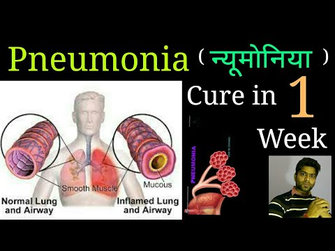 Pneumonia, cold and cough causes, symptoms,best cure in homeopathy in hindi.